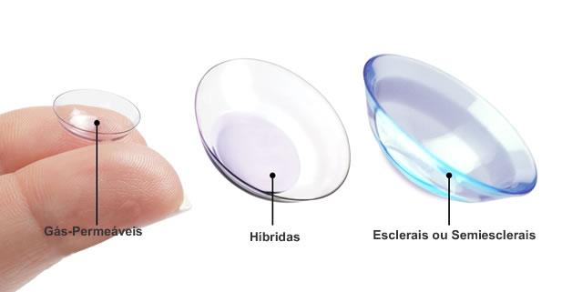 As Lentes Esclerais são lentes de contato especialmente desenvolvidas para  pessoas portadoras de anomalias na córnea. Elas são indicadas para a  correção de ... e010ddc00c