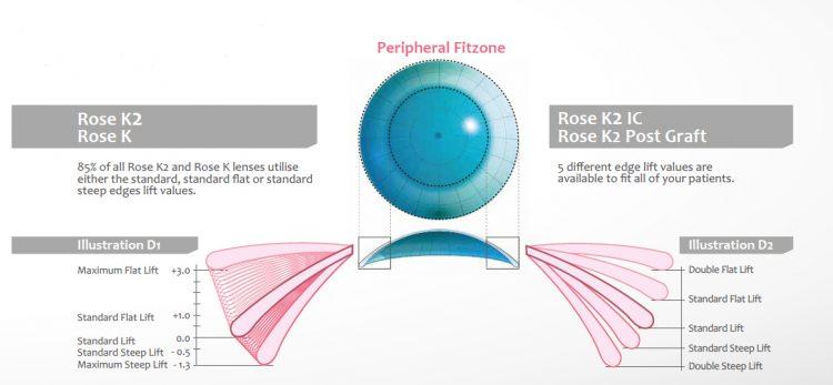 131d460010e18 Anunciadas como uma revolução no desenho de lentes gás-permeáveis para  ceratocone, as lentes Rose K2 conquistaram rapidamente a preferência de  adaptadores e ...