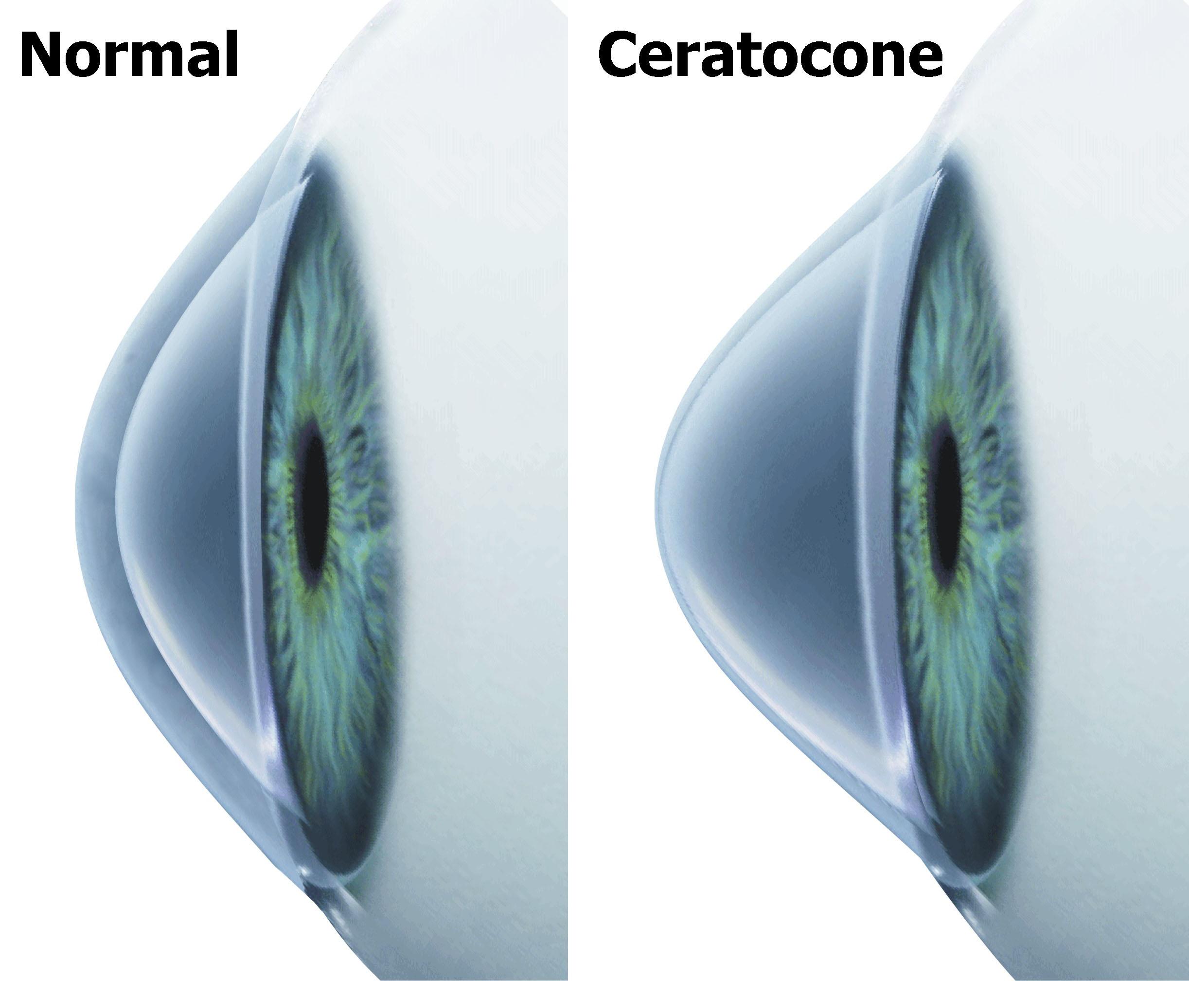 e59e80a3527ef Cirurgia de Ceratocone em Curitiba