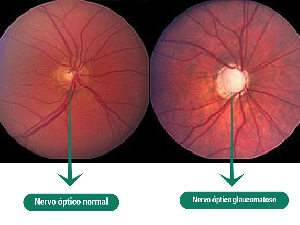 tratamento para glaucoma