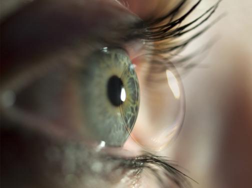 59c749ac0d222 Indicações de uso  As lentes de contato rígidas gás-permeáveis são  indicadas para ceratocones, astigmatismo de córnea, casos pós-cirúrgicos ou  ainda pessoas ...