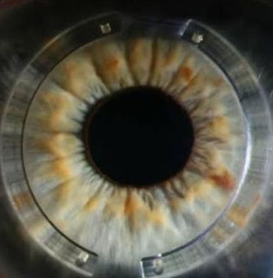 anel intra estromal crosslinking ceratocone curitiba